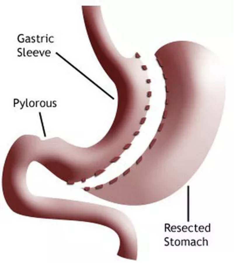 Gastric Sleeve New Jersey